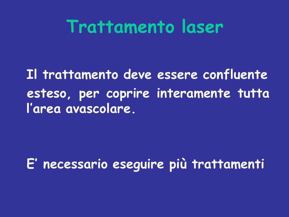 Trattamento laser Il trattamento deve essere confluente esteso, per coprire interamente tutta larea avascolare. E necessario eseguire più trattamenti