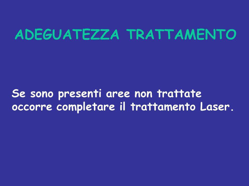 ADEGUATEZZA TRATTAMENTO Se sono presenti aree non trattate occorre completare il trattamento Laser.