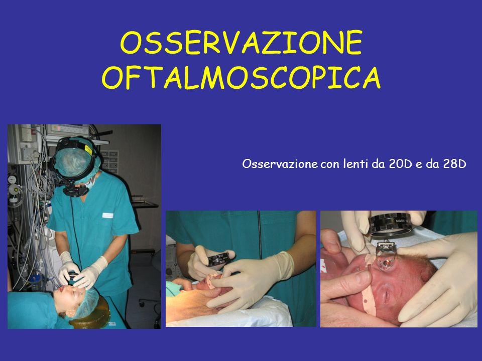 OSSERVAZIONE OFTALMOSCOPICA Osservazione con lenti da 20D e da 28D