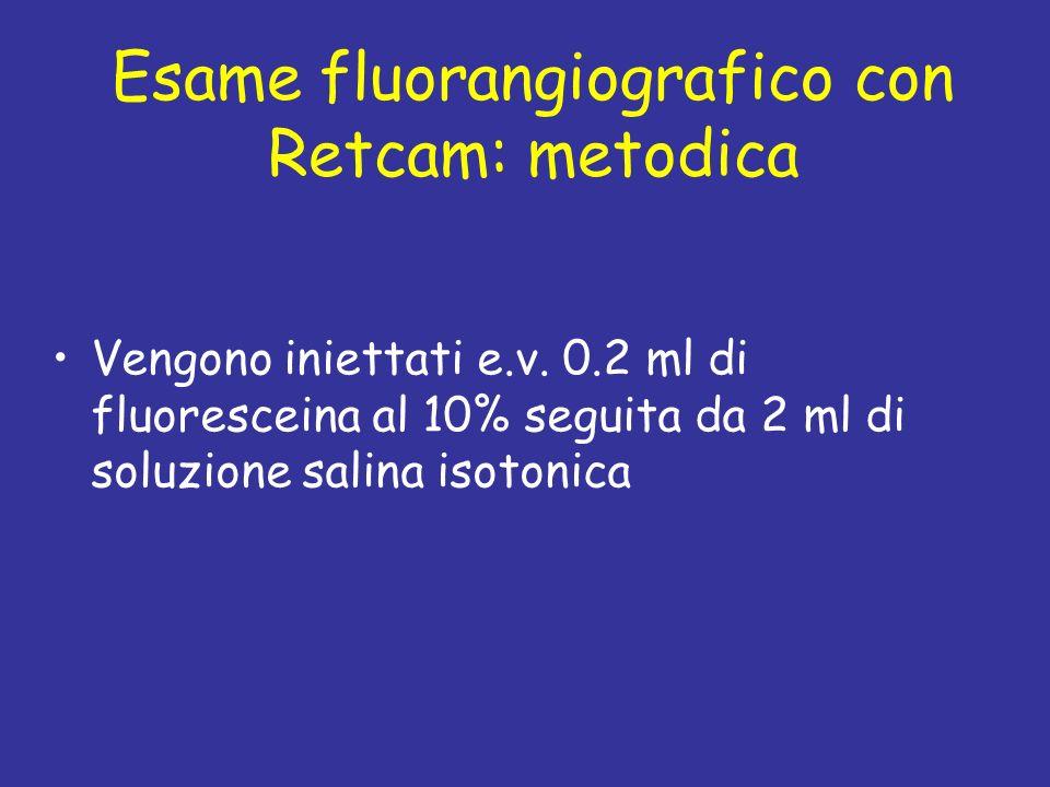 Esame fluorangiografico con Retcam: metodica Vengono iniettati e.v. 0.2 ml di fluoresceina al 10% seguita da 2 ml di soluzione salina isotonica