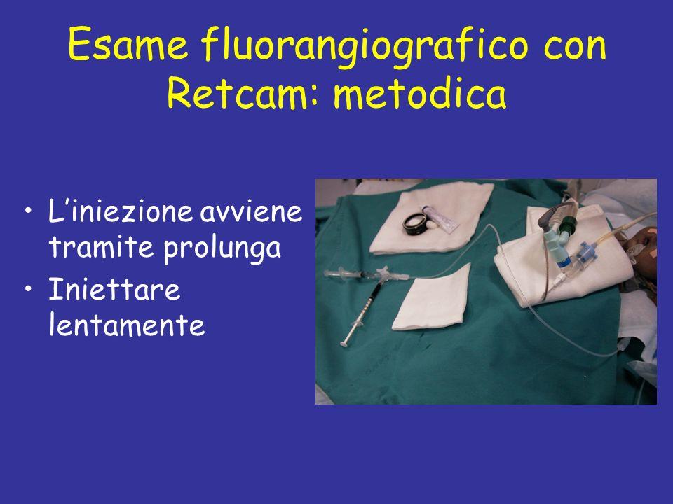 Esame fluorangiografico con Retcam: metodica Liniezione avviene tramite prolunga Iniettare lentamente