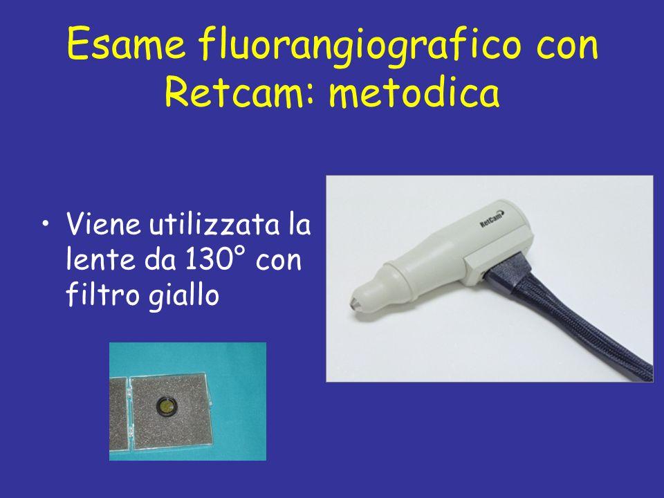 Esame fluorangiografico con Retcam: metodica Viene utilizzata la lente da 130° con filtro giallo