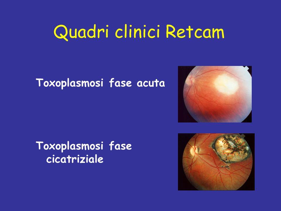 Quadri clinici Retcam Toxoplasmosi fase acuta Toxoplasmosi fase cicatriziale