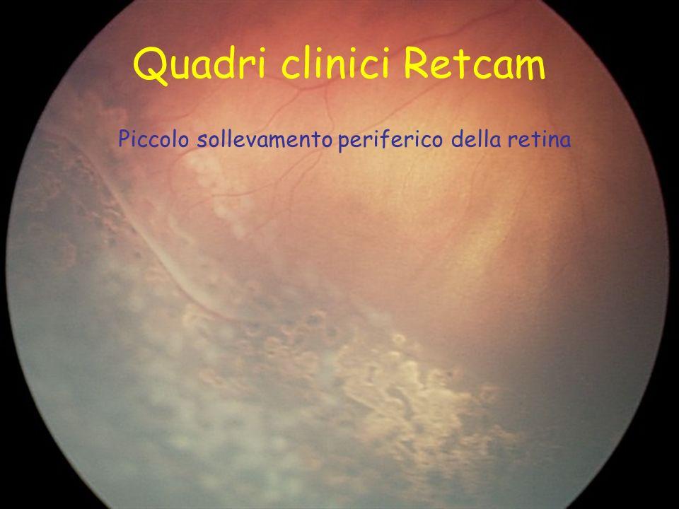 Quadri clinici Retcam Piccolo sollevamento periferico della retina