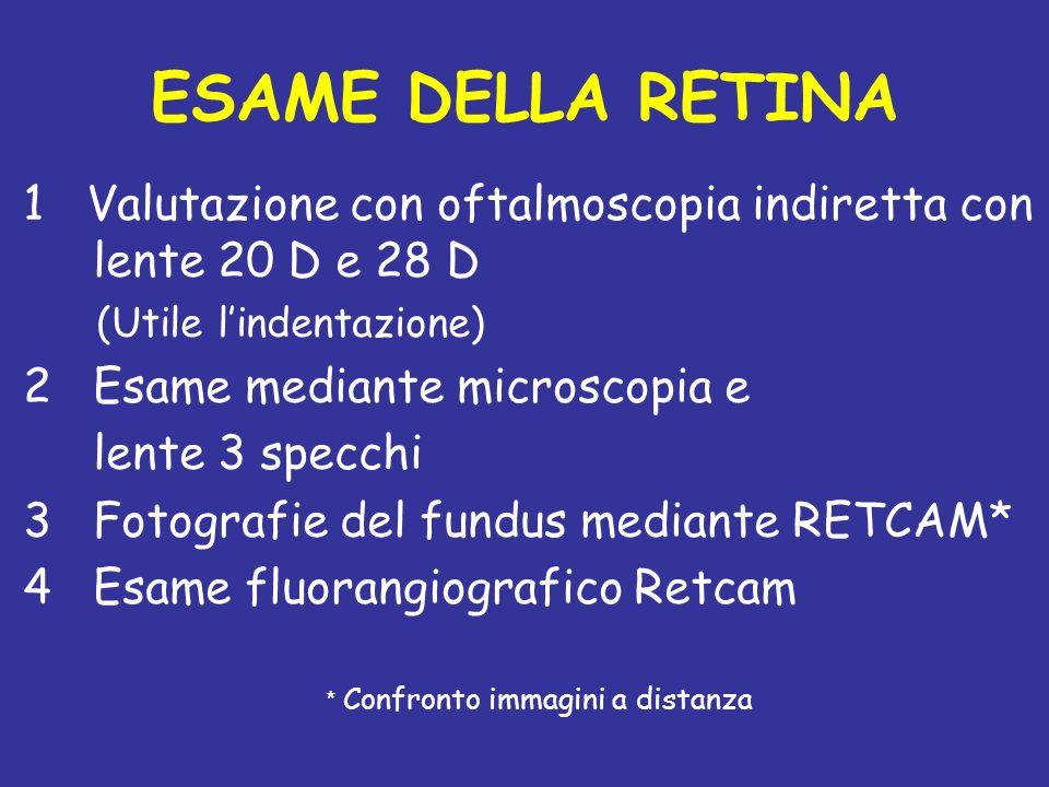ESAME DELLA RETINA 1 Valutazione con oftalmoscopia indiretta con lente 20 D e 28 D (Utile lindentazione) 2Esame mediante microscopia e lente 3 specchi