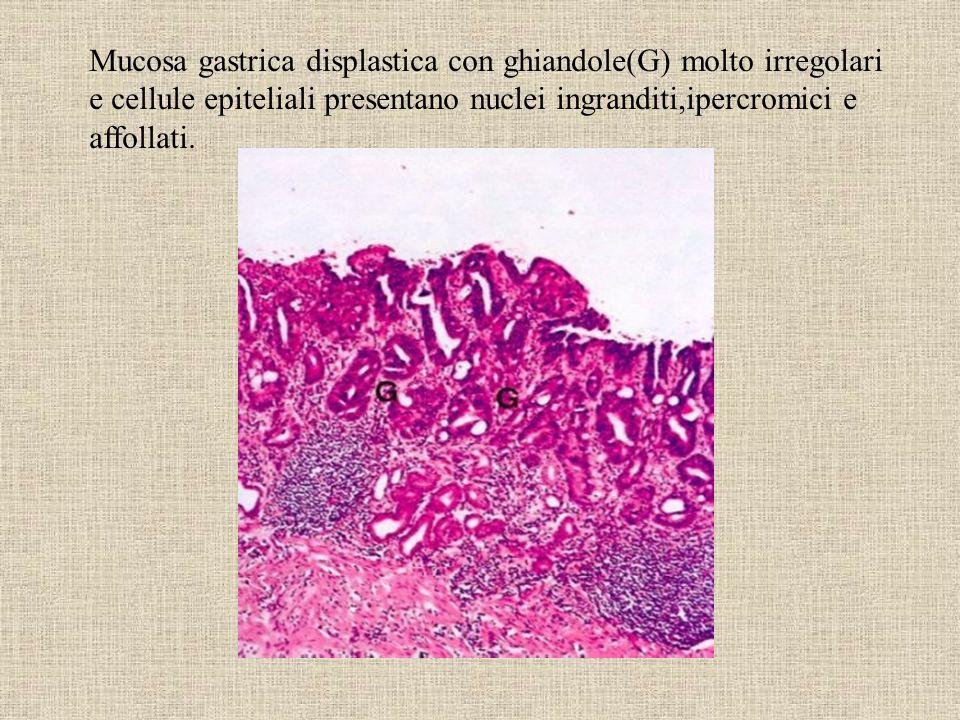 Mucosa gastrica displastica con ghiandole(G) molto irregolari e cellule epiteliali presentano nuclei ingranditi,ipercromici e affollati.