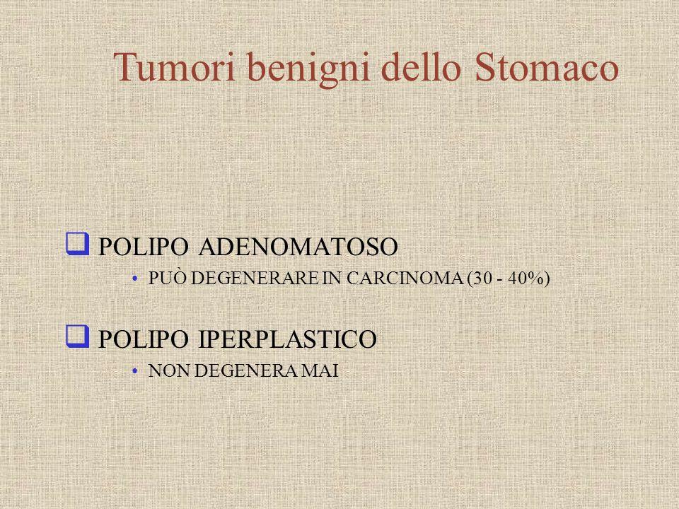 POLIPO ADENOMATOSO PUÒ DEGENERARE IN CARCINOMA (30 - 40%) POLIPO IPERPLASTICO NON DEGENERA MAI Tumori benigni dello Stomaco