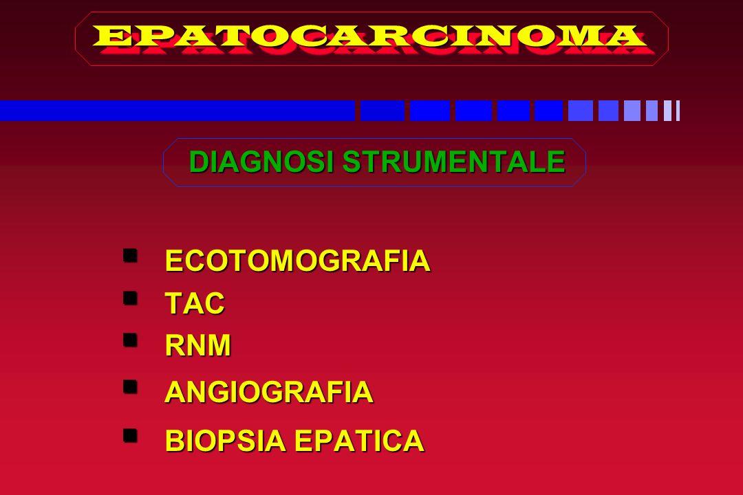 EPATOCARCINOMAEPATOCARCINOMA DIAGNOSI STRUMENTALE ECOTOMOGRAFIA ECOTOMOGRAFIA TAC TAC RNM RNM ANGIOGRAFIA ANGIOGRAFIA BIOPSIA EPATICA BIOPSIA EPATICA