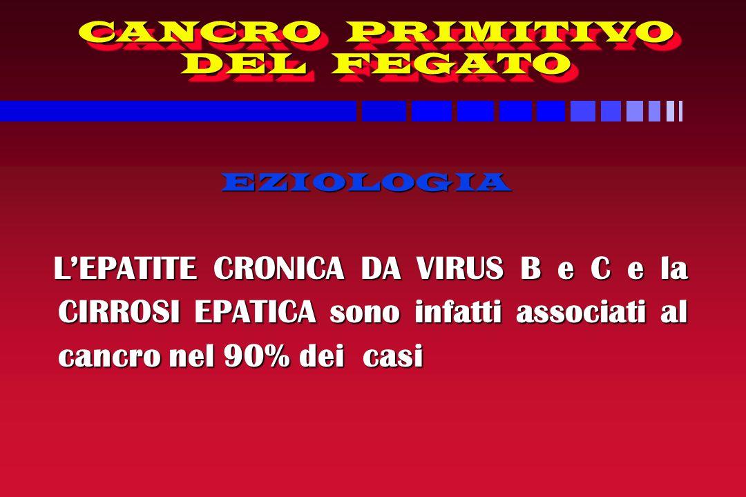 CANCRO PRIMITIVO DEL FEGATO EZIOLOGIA EZIOLOGIA LEPATITE CRONICA DA VIRUS B e C e la CIRROSI EPATICA sono infatti associati al cancro nel 90% dei casi LEPATITE CRONICA DA VIRUS B e C e la CIRROSI EPATICA sono infatti associati al cancro nel 90% dei casi