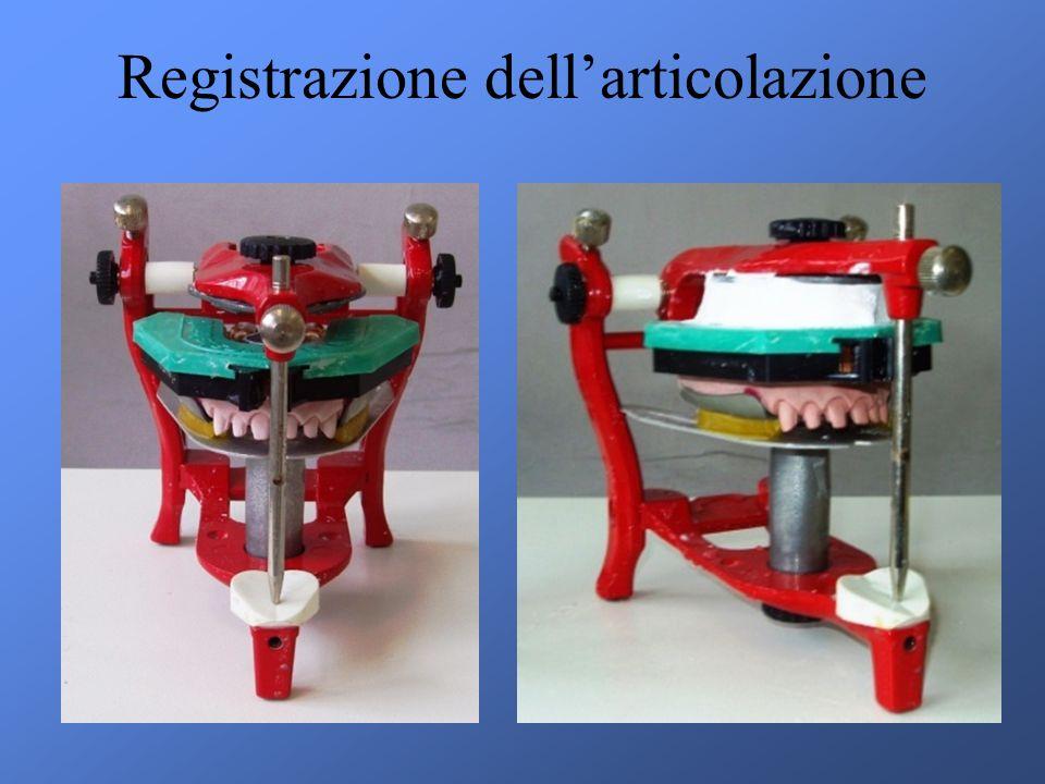 Registrazione dellarticolazione