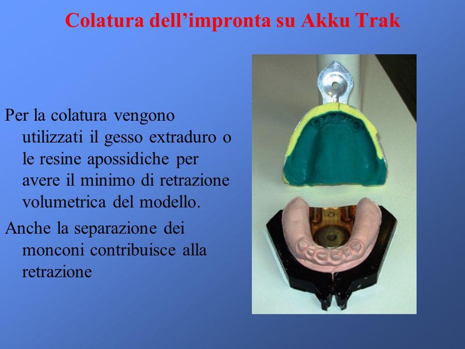 Colatura dellimpronta su Akku Trak Per la colatura vengono utilizzati il gesso extraduro o le resine apossidiche per avere il minimo di retrazione volumetrica del modello.
