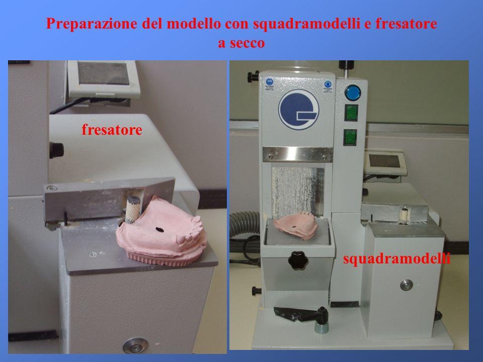 Preparazione del modello con squadramodelli e fresatore a secco fresatore squadramodelli