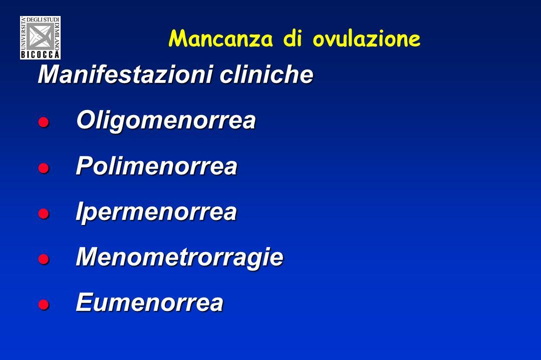 Mancanza di ovulazione Manifestazioni cliniche Oligomenorrea Oligomenorrea Polimenorrea Polimenorrea Ipermenorrea Ipermenorrea Menometrorragie Menometrorragie Eumenorrea Eumenorrea