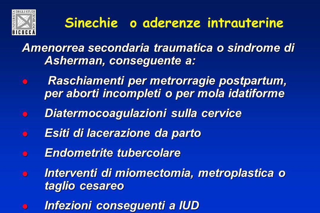 Sinechie o aderenze intrauterine Amenorrea secondaria traumatica o sindrome di Asherman, conseguente a: Raschiamenti per metrorragie postpartum, per aborti incompleti o per mola idatiforme Raschiamenti per metrorragie postpartum, per aborti incompleti o per mola idatiforme Diatermocoagulazioni sulla cervice Diatermocoagulazioni sulla cervice Esiti di lacerazione da parto Esiti di lacerazione da parto Endometrite tubercolare Endometrite tubercolare Interventi di miomectomia, metroplastica o taglio cesareo Interventi di miomectomia, metroplastica o taglio cesareo Infezioni conseguenti a IUD Infezioni conseguenti a IUD
