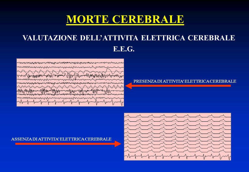 MORTE CEREBRALE VALUTAZIONE DELLATTIVITA ELETTRICA CEREBRALE PRESENZA DI ATTIVITA ELETTRICA CEREBRALE E.E.G. ASSENZA DI ATTIVITA ELETTRICA CEREBRALE