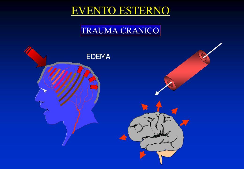 Qualsiasi attività elettrica del SNC (elettroencefalogramma piatto) I MEDICI ESEGUONO UNA SERIE DI ACCERTAMENTI CLINICI PER STABILIRE, PER UN PERIODO DI ALMENO 6 ORE CONSECUTIVE LA CONTEMPORANEA ASSENZA DI: Respiro spontaneo Riflessi che partono direttamente dal SNC Reazioni agli stimoli dolorifici Stato di coscienza