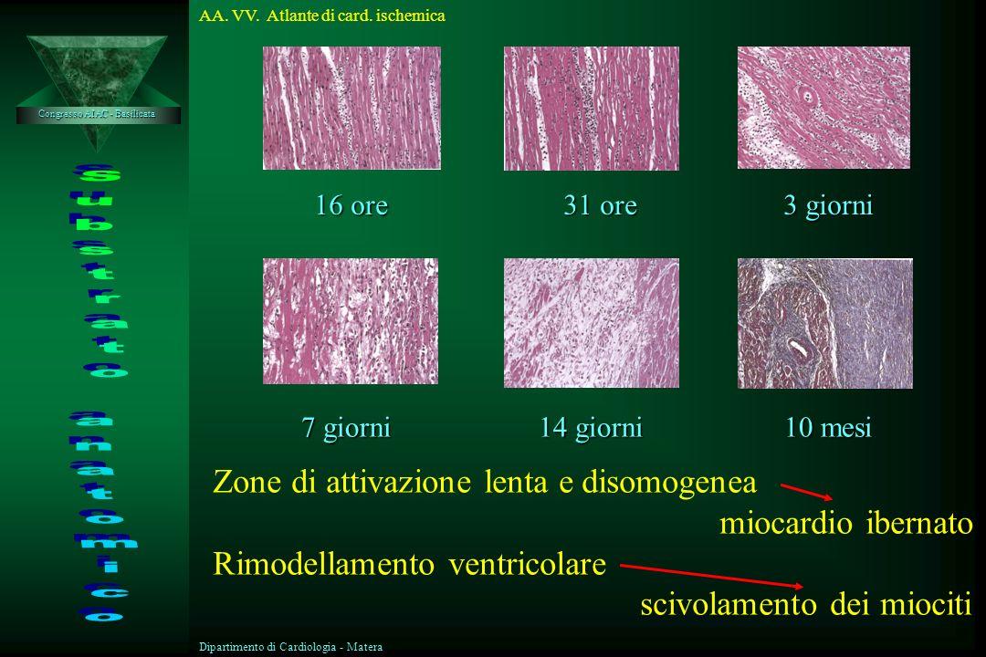 Displasia aritmogena del Ventricolo destro Sindrome di Brugada Cardiopatia ischemica Cardiomiopatia dilatativa Cardiomiopatia ipertrofica Congresso AI