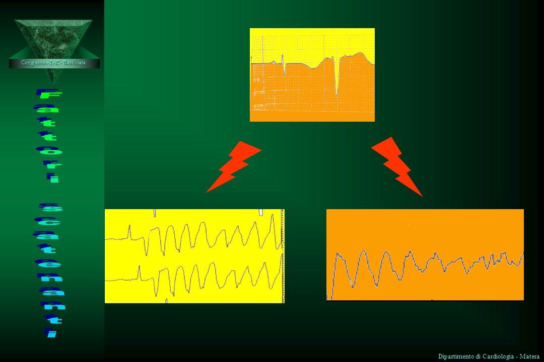 Alterazione sistemica aree a conduzione lenta aree a conduzione lenta ¥ Ischemia-riperfusione alterazione potenziale di membrana alterazione potenzial
