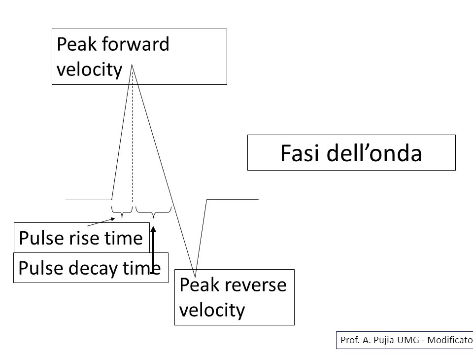 Fasi dellonda Pulse rise time Pulse decay time Peak forward velocity Peak reverse velocity Prof. A. Pujia UMG - Modificato