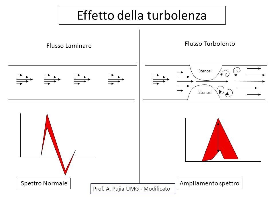 Effetto della turbolenza Ampliamento spettroSpettro Normale Prof. A. Pujia UMG - Modificato Flusso Laminare Flusso Turbolento Stenosi