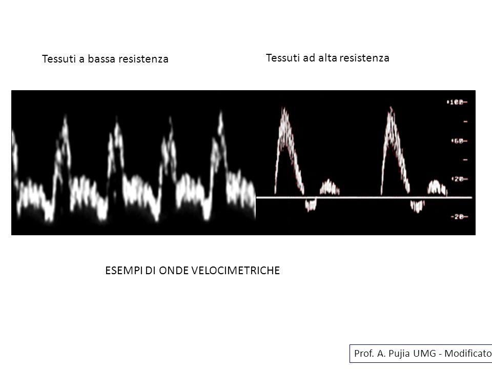 ESEMPI DI ONDE VELOCIMETRICHE Prof. A. Pujia UMG - Modificato Tessuti a bassa resistenza Tessuti ad alta resistenza
