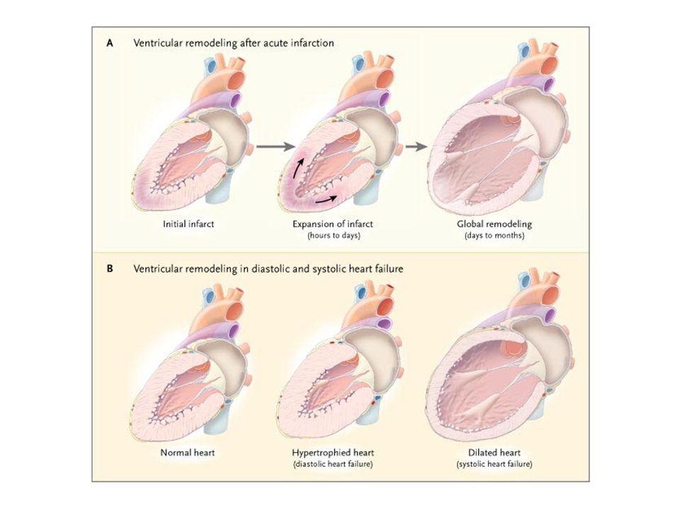 DIURETICI e ANTIALDOSTERONICI Depletori di potassio Diuretici dellansa (furosemide) Tiazidici (idroclorotiazide) Risparmiatori di potassio- Antialdosteronici Canreonato di potassio Spironolattone