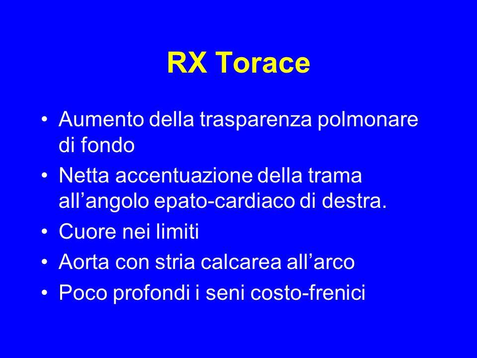 RX Torace Aumento della trasparenza polmonare di fondo Netta accentuazione della trama allangolo epato-cardiaco di destra.