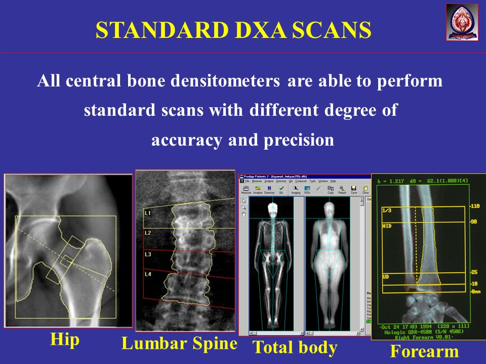 Hip Lumbar Spine Total body STANDARD DXA SCANS Forearm All central bone densitometers are able to perform standard scans with different degree of accu