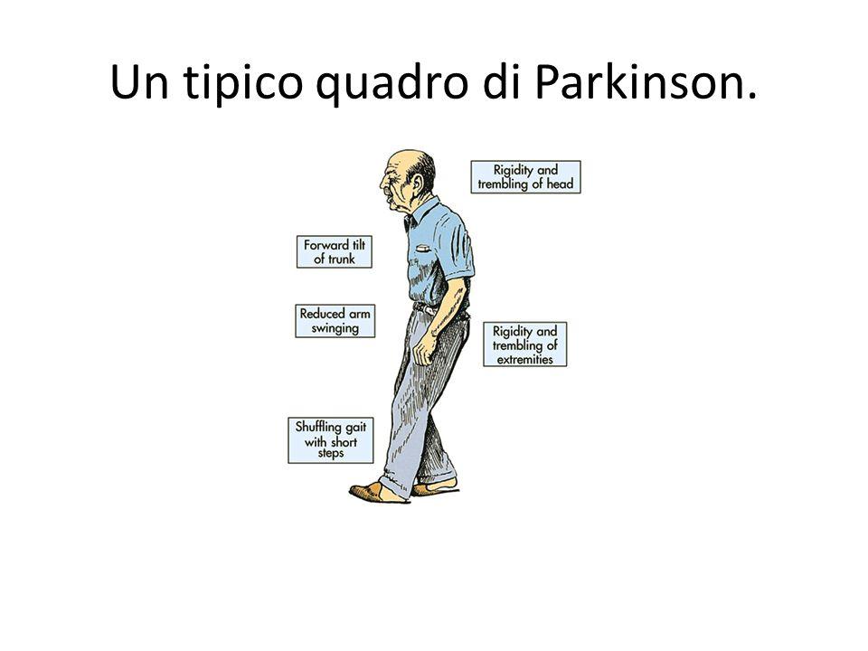 Un tipico quadro di Parkinson.