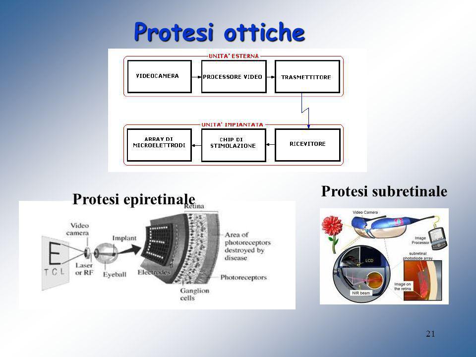 21 Protesi ottiche Protesi subretinale Protesi epiretinale