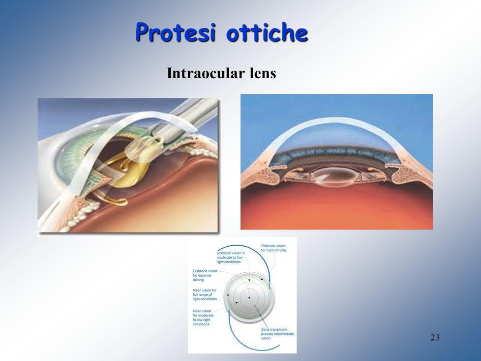 23 Protesi ottiche Intraocular lens