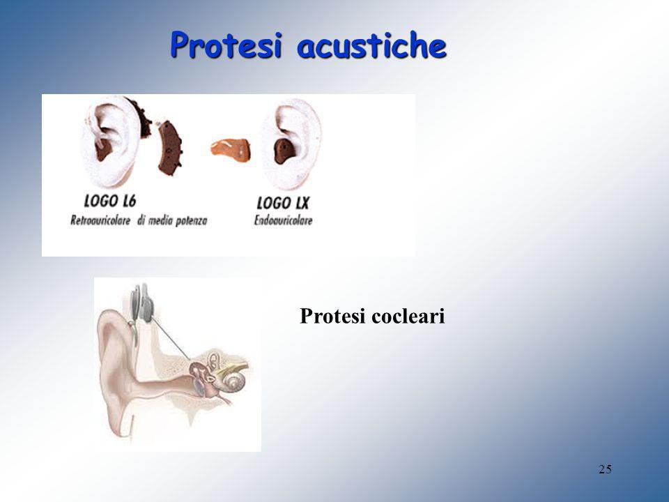25 Protesi acustiche Protesi cocleari