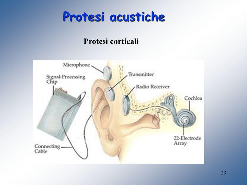 26 Protesi acustiche Protesi corticali