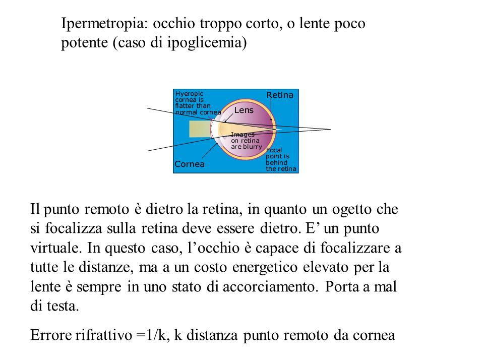 Ipermetropia: occhio troppo corto, o lente poco potente (caso di ipoglicemia) Il punto remoto è dietro la retina, in quanto un ogetto che si focalizza