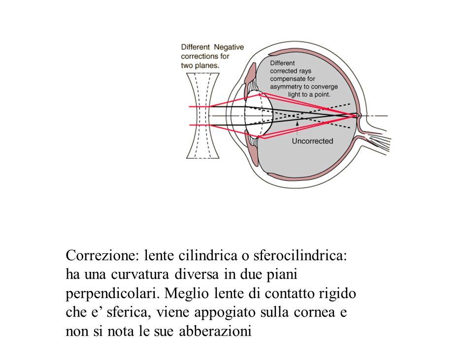 Correzione: lente cilindrica o sferocilindrica: ha una curvatura diversa in due piani perpendicolari. Meglio lente di contatto rigido che e sferica, v