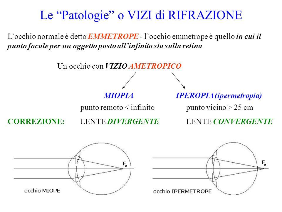 Le Patologie o VIZI di RIFRAZIONE Locchio normale è detto EMMETROPE - locchio emmetrope è quello in cui il punto focale per un oggetto posto allinfini
