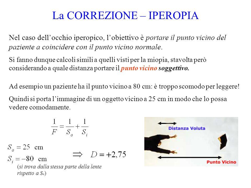 La CORREZIONE – IPEROPIA Nel caso dellocchio iperopico, lobiettivo è portare il punto vicino del paziente a coincidere con il punto vicino normale. Si