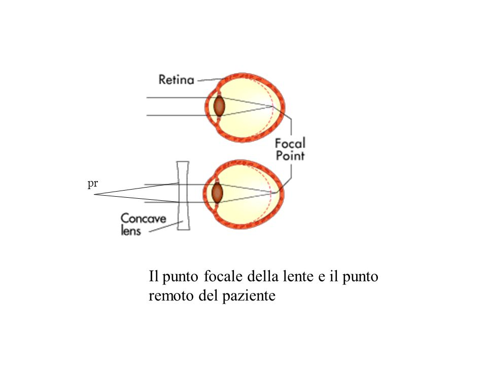 Ipermetropia: occhio troppo corto, o lente poco potente (caso di ipoglicemia) Il punto remoto è dietro la retina, in quanto un ogetto che si focalizza sulla retina deve essere dietro.