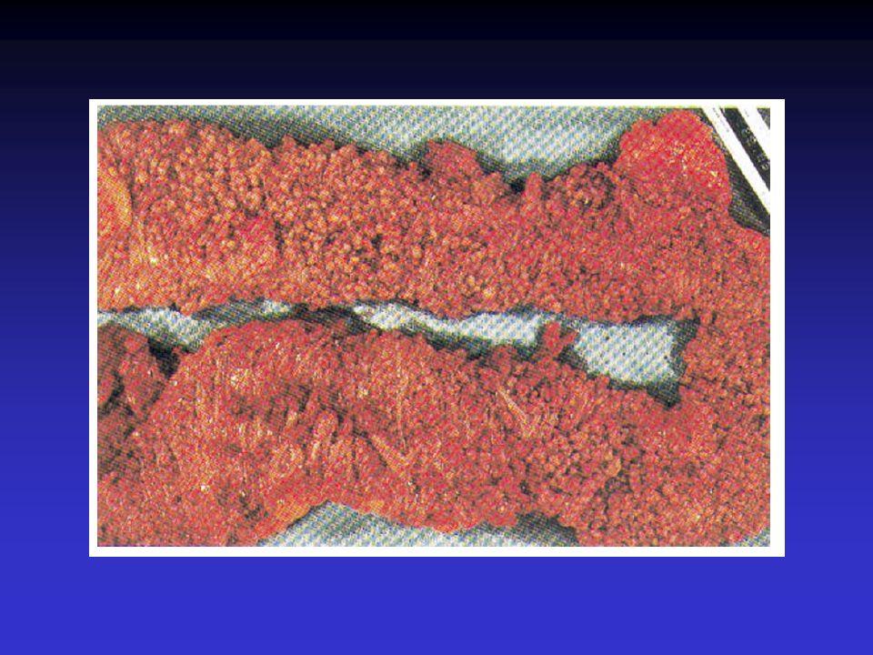 Poliposi adenomatosa familiare (FAP) Primi indizi sulla localizzazione del gene della poliposi adenomatosa del colon datano al 1986 Herrera L, Kakati S, Gibas L, Pietrzak E, Sandberg AA.