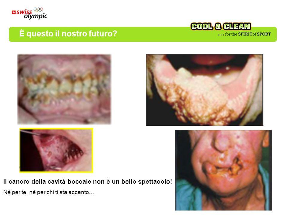 Il cancro della cavità boccale non è un bello spettacolo! Né per te, né per chi ti sta accanto… È questo il nostro futuro?