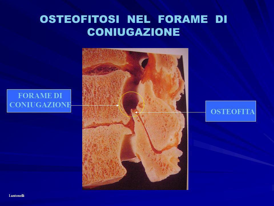 OSTEOFITOSI NEL FORAME DI CONIUGAZIONE FORAME DI CONIUGAZIONE OSTEOFITA l.antonelli