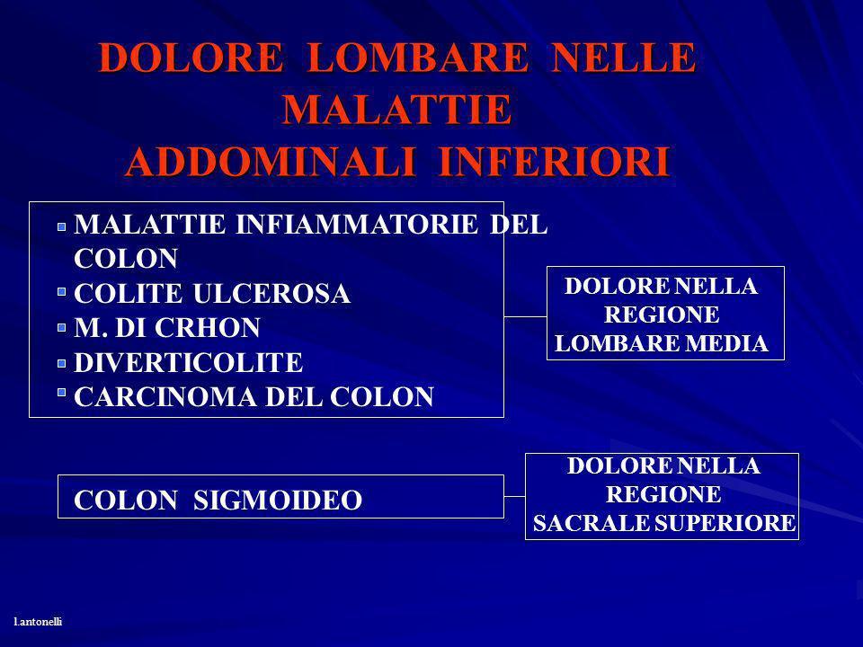 DOLORE LOMBARE NELLE MALATTIE ADDOMINALI INFERIORI MALATTIE INFIAMMATORIE DEL COLON COLITE ULCEROSA M. DI CRHON DIVERTICOLITE CARCINOMA DEL COLON COLO