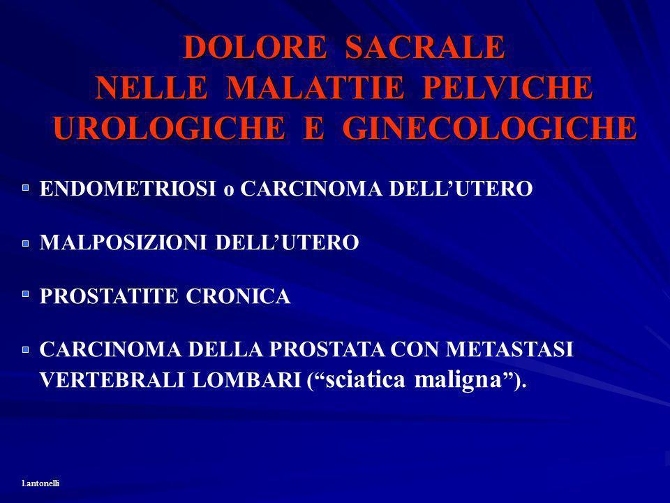 DOLORE SACRALE NELLE MALATTIE PELVICHE UROLOGICHE E GINECOLOGICHE ENDOMETRIOSI o CARCINOMA DELLUTERO MALPOSIZIONI DELLUTERO PROSTATITE CRONICA CARCINO
