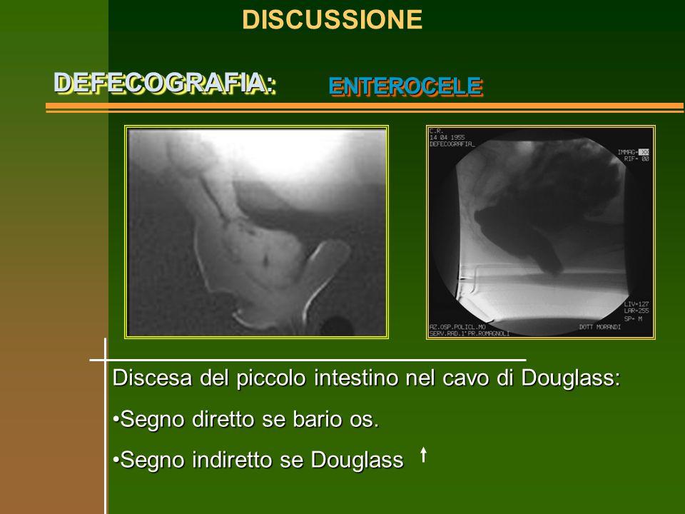 ENTEROCELEENTEROCELE Discesa del piccolo intestino nel cavo di Douglass: Segno diretto se bario os.