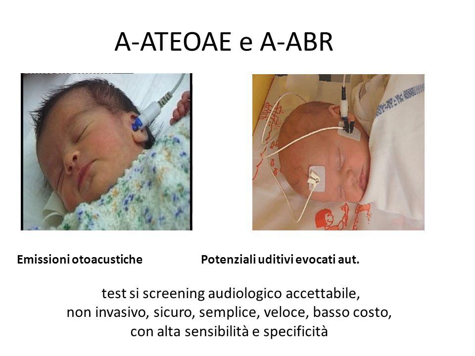 A-ATEOAE e A-ABR test si screening audiologico accettabile, non invasivo, sicuro, semplice, veloce, basso costo, con alta sensibilità e specificità Em