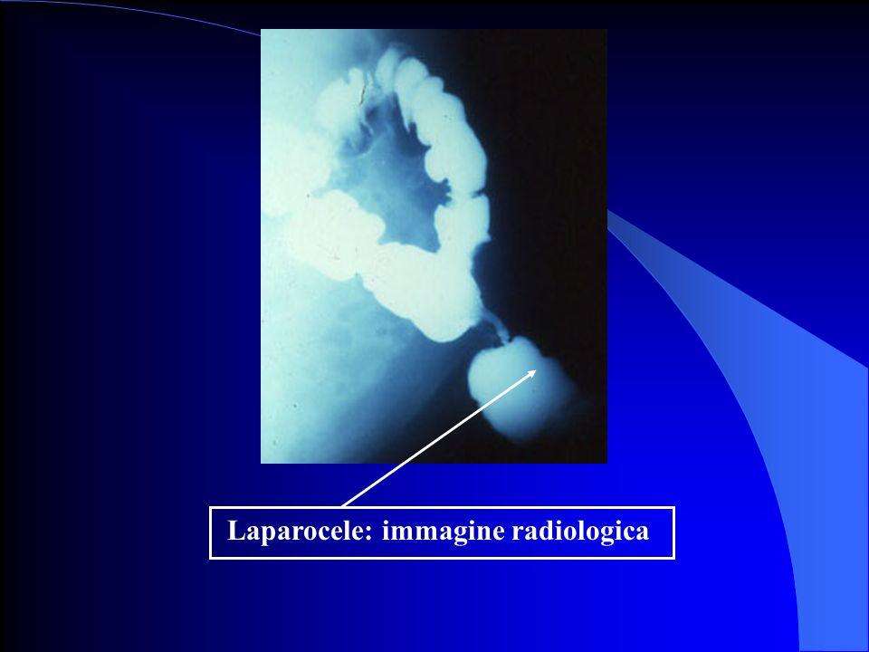 Laparocele: immagine radiologica