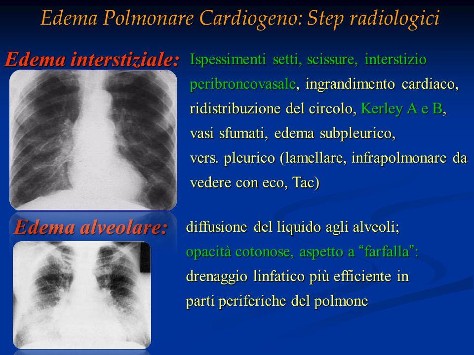 Edema interstiziale: Ispessimenti setti, scissure, interstizio Ispessimenti setti, scissure, interstizio peribroncovasale, ingrandimento cardiaco, per