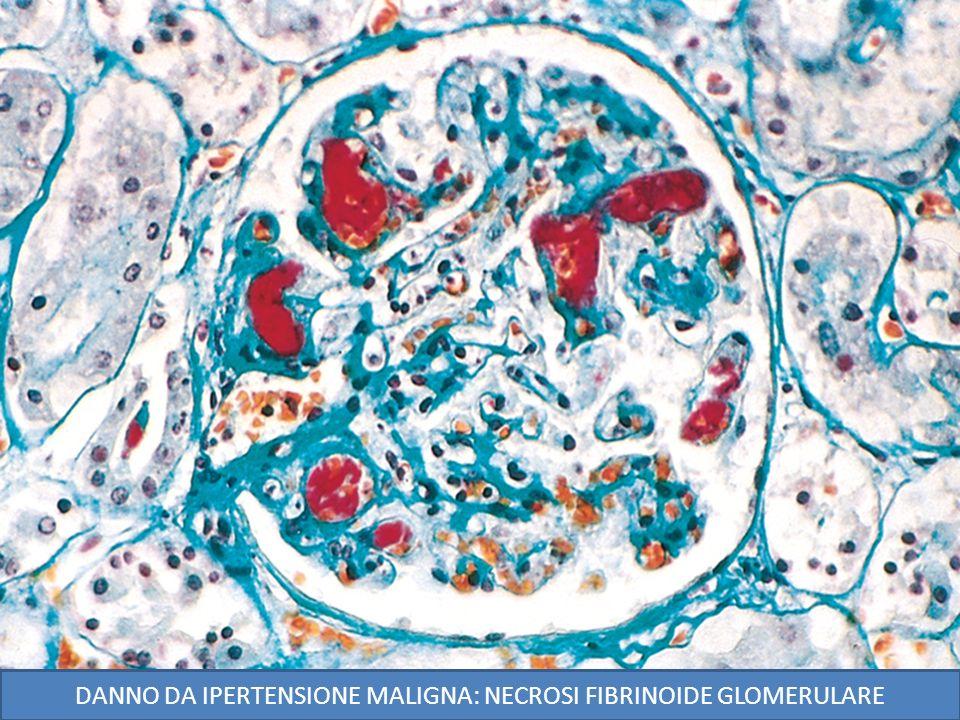 DANNO DA IPERTENSIONE MALIGNA: NECROSI FIBRINOIDE GLOMERULARE
