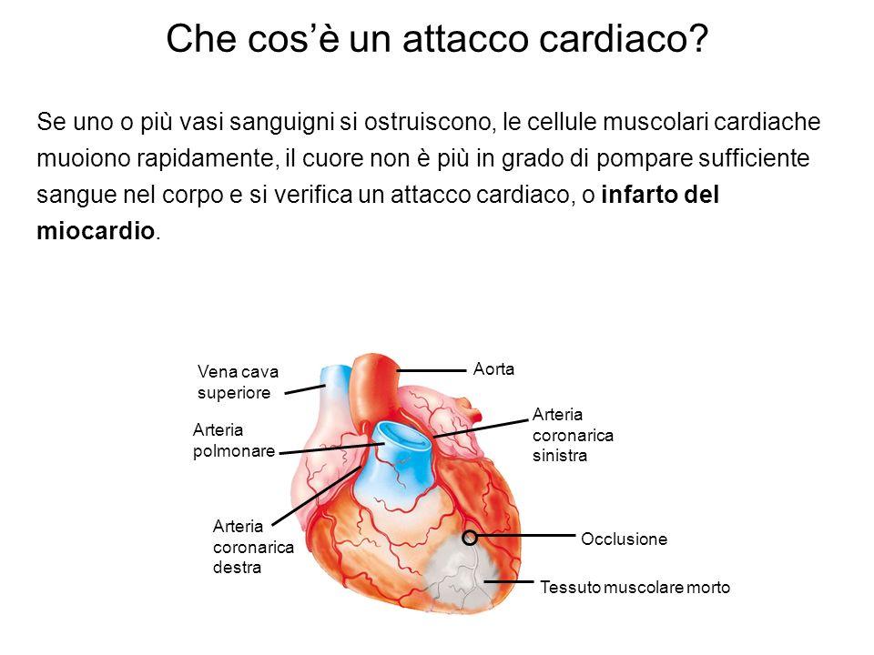 Che cosè un attacco cardiaco? Se uno o più vasi sanguigni si ostruiscono, le cellule muscolari cardiache muoiono rapidamente, il cuore non è più in gr