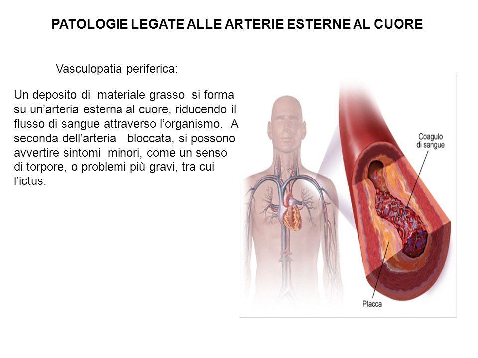 Vasculopatia periferica: PATOLOGIE LEGATE ALLE ARTERIE ESTERNE AL CUORE Un deposito di materiale grasso si forma su unarteria esterna al cuore, riduce